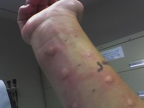 allergy | lrleo, Skeleton
